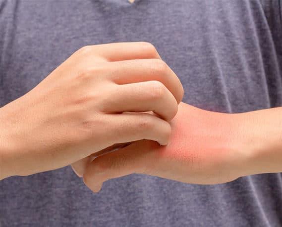 Especialidade - Alergia | PneumoCenter - Centro de Estudo e Tratamento da Tosse