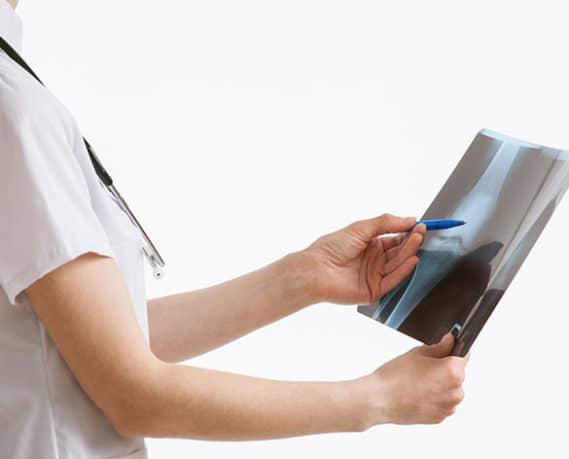 Especialidade - Reumatologia | PneumoCenter Centro de Estudo e Tratamento da Tosse