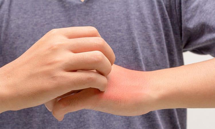Tratamento das Alergias | PneumoCenter - Centro de Estudo e Tratamento da Tosse