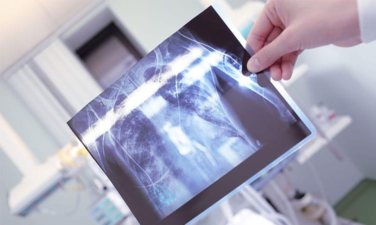 Tratamento da Tuberculose | PneumoCenter - Centro de Estudo e Tratamento da Tosse