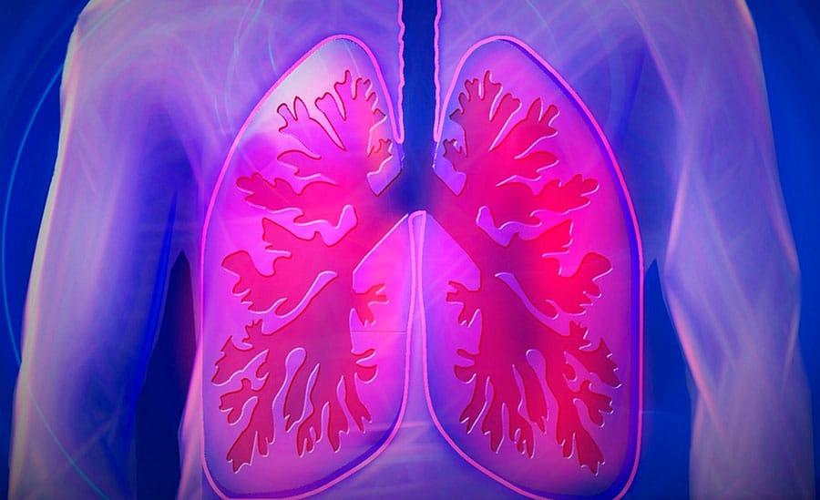 Asma e bronquite: entenda as diferenças entre essas doenças | PneumoCenter